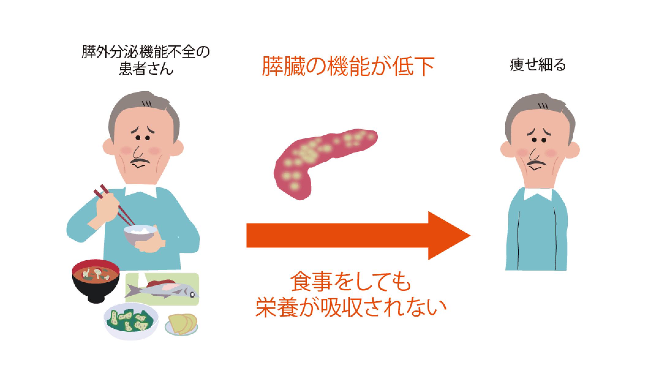 膵外分泌機能不全