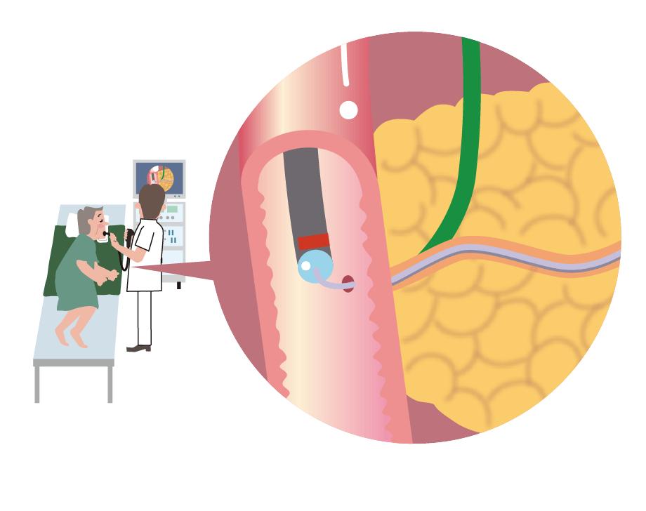 ERCP(内視鏡的逆行性胆管膵管造影)検査