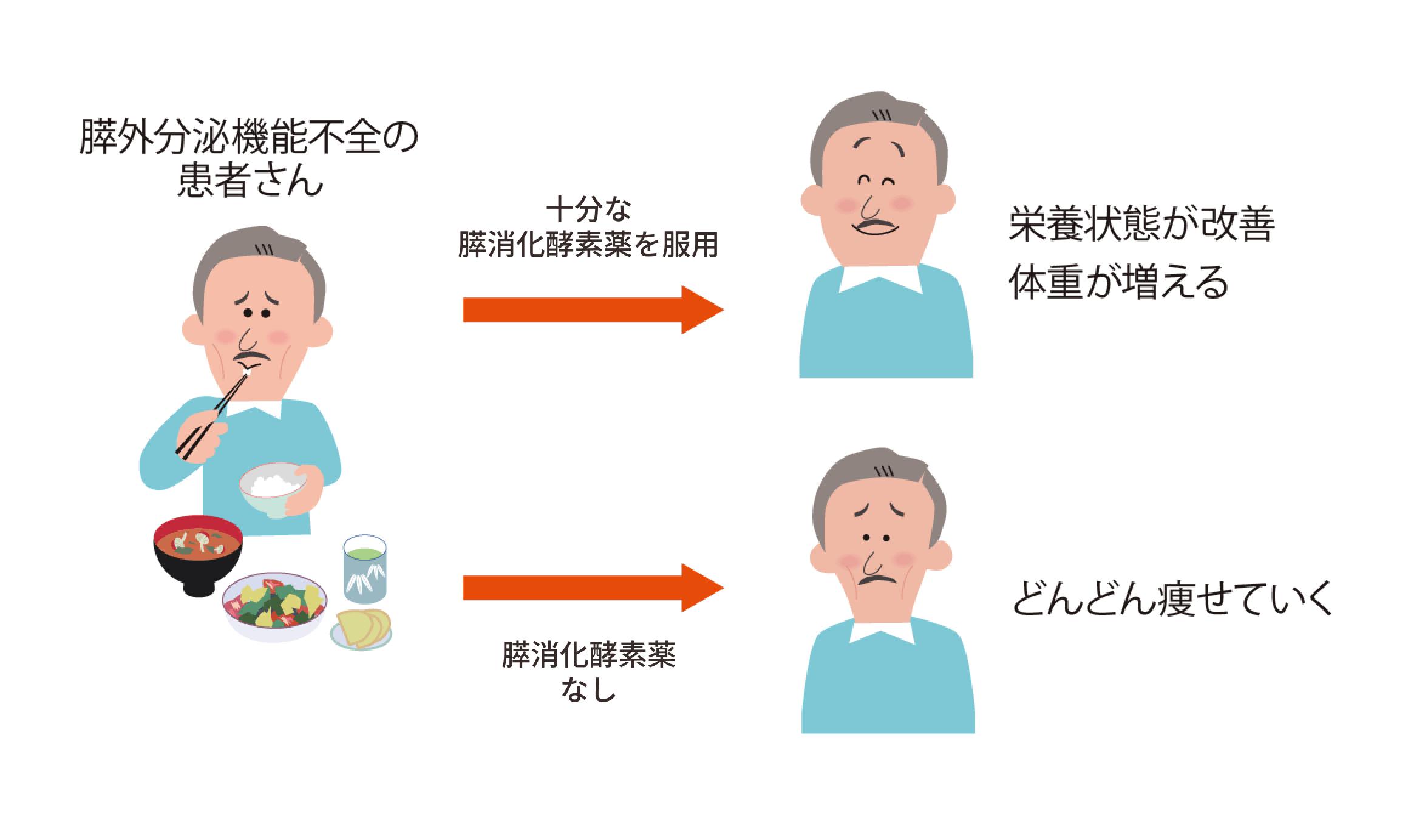 膵酵素補充療法